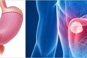 Από τους πιο συχνούς αλλά με πτωτικές τάσεις ο καρκίνος του στομάχου στην Ευρώπη