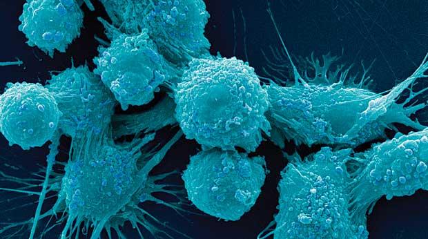 10 Συμπτώματα καμπανάκι που μπορεί να υποδηλώνουν καρκίνο